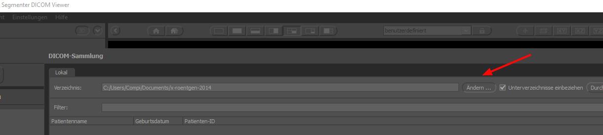 Segmenter Dicom Viewer